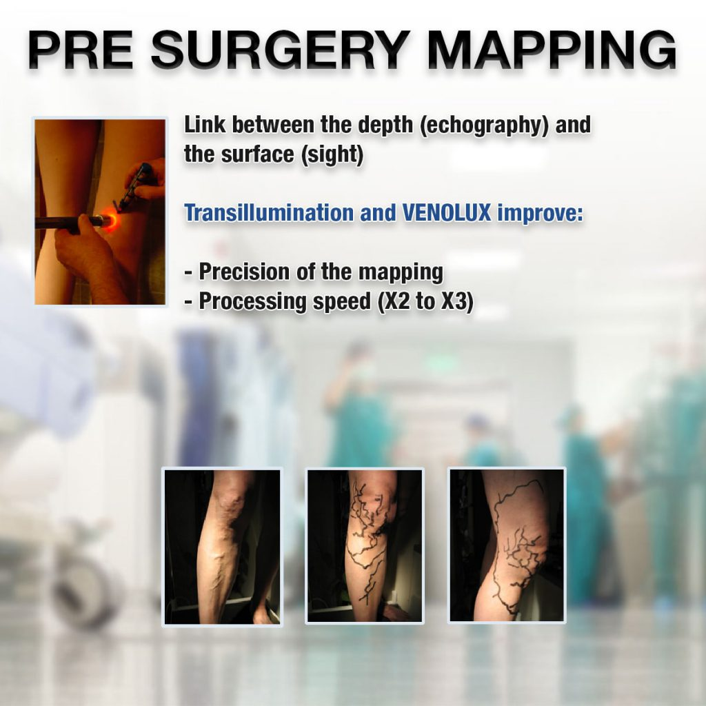 pre-surgery-mapping